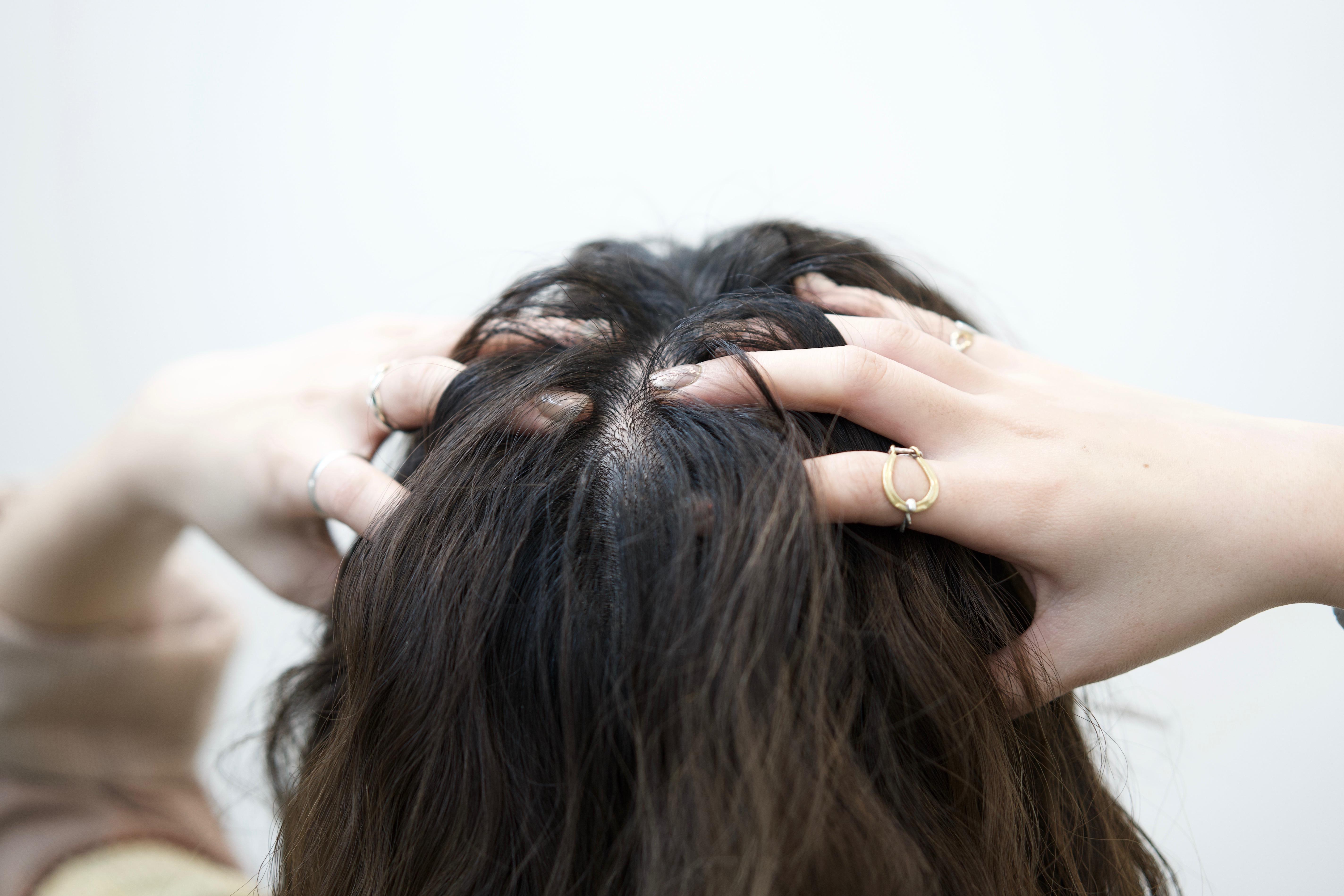 症 頭皮 神経